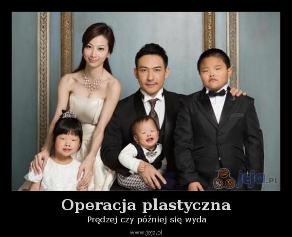 operacja_plastyczna_sie_wyda