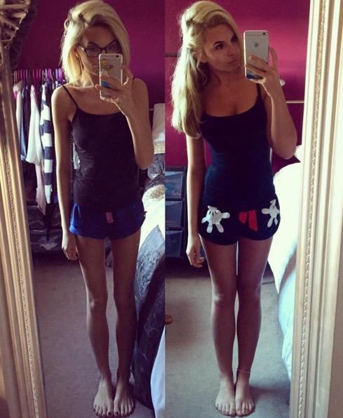 anoreksja to choroba (3)
