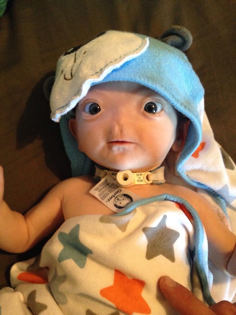 dziecko bez nosa (5)