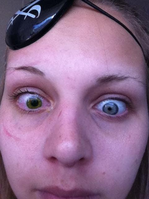 heterochromia-12