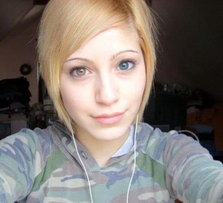 heterochromia-13