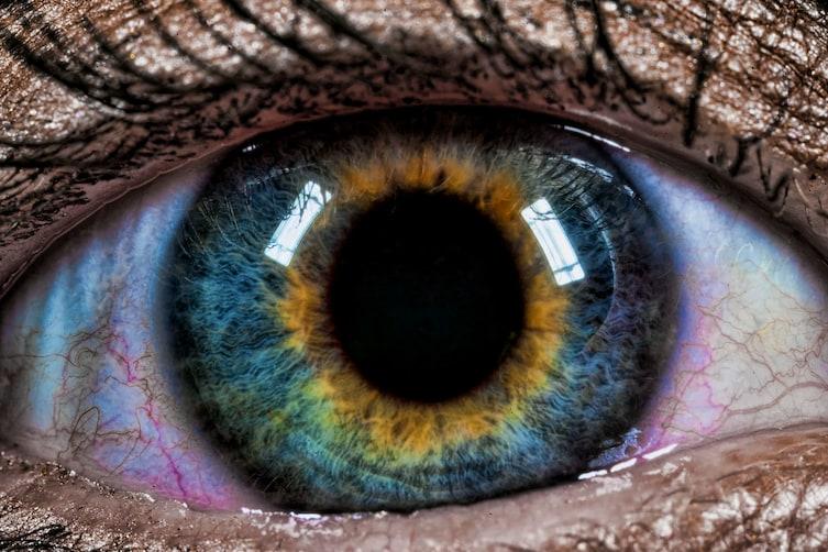 heterochromia-3