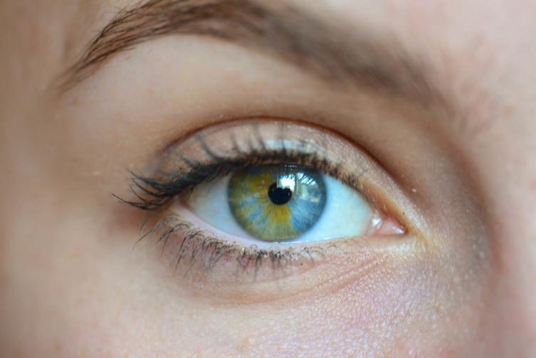 heterochromia-4