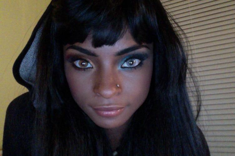 heterochromia-7