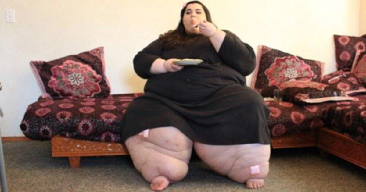 Poddała się operacji zmniejszenia żołądka. Po roku nie poznał jej nawet lekarz
