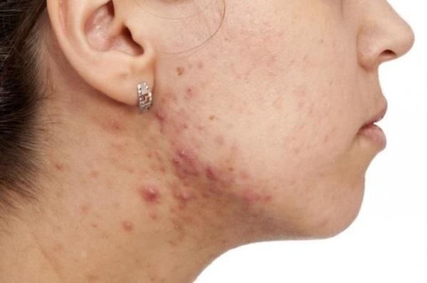 Umiejscowienie trądziku może świadczyć o problemach związanych ze zdrowiem