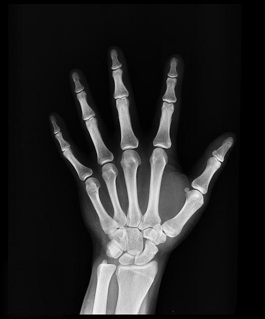 bones photo