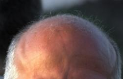 Poznaj 9 olejków eterycznych, które stymulują wzrost włosów. Efekty ich działania są znakomite!