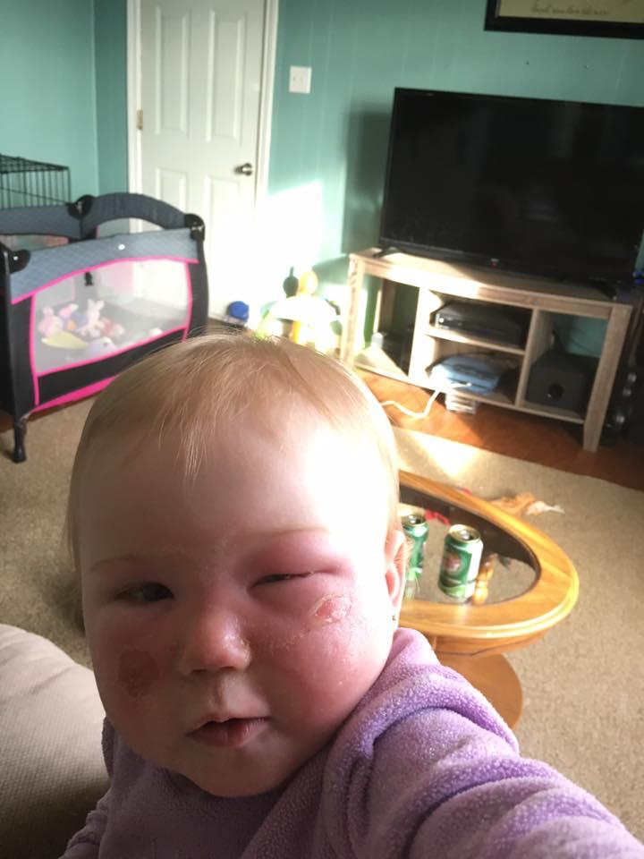 Była pewna, że chroni swoją córeczkę. Nie przypuszczała, że ten kosmetyk doprowadzi do poparzenia!