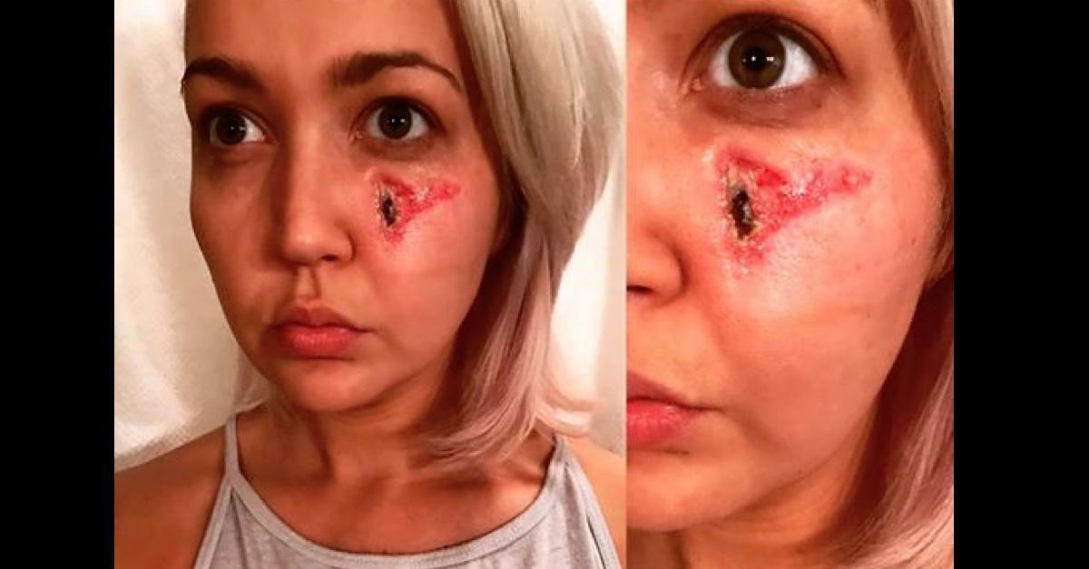 Kobieta budzi się z potwornym bólem twarzy. Brakuje jej kawałka skóry, a w dłoni dostrzega sprawcę