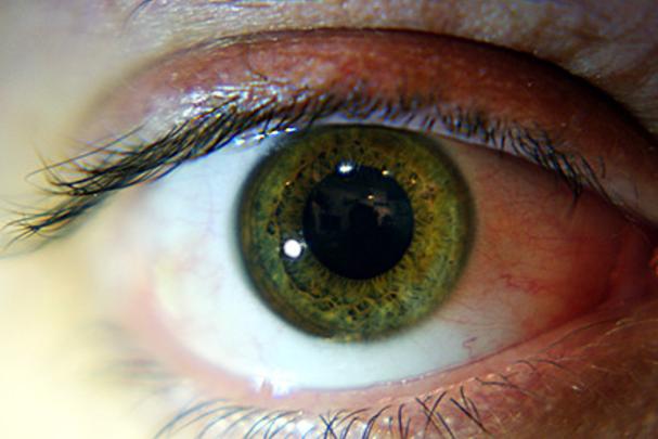 12 popularnych chorób rozpoznasz po oczach. Nie ignoruj tych znaków!