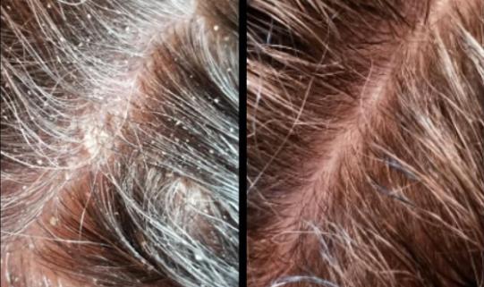 Dodaj odrobinę soli do szamponu, a 3 największe problemy związane z pielęgnacją włosów znikną