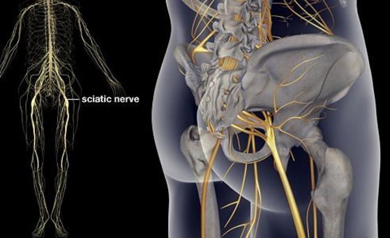Ta 10-minutowa metoda pomoże Ci złagodzić ból spowodowany uciskiem na nerw kulszowy