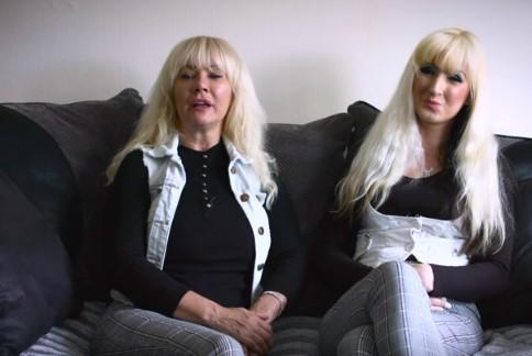 57-latka za wszelką cenę chciała wyglądać jak swoja córka. Na operacje wydała ponad 40 000 funtów