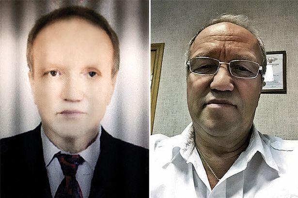 Rosjanin zauważył, że po przeszczepie wątroby od ciemnoskórego dawcy, jego skóra zmienia kolor