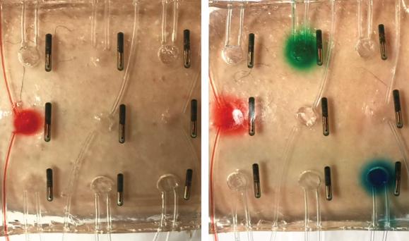 Naukowcy przedstawiają nowy wynalazek: elektroniczny bandaż, który leczy przewlekłe rany