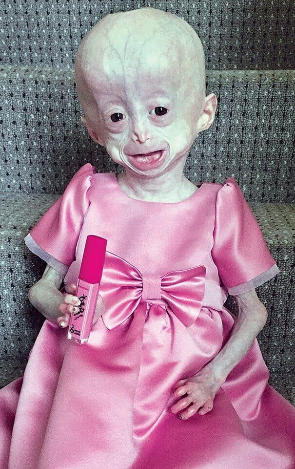Przez chorobę 8-latka starzała się 10 razy szybciej. To nie powstrzymało jej od normalnego życia