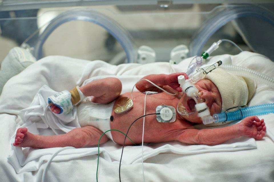 Myślała, że urodzi bliźniaki. Jednak w czasie badania lekarz wyszeptał jej zupełnie inną wiadomość