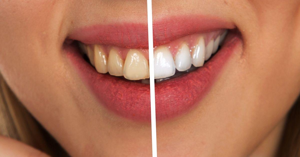 jak wybielić zęby szybko