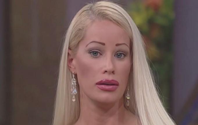 Chciała mieć nos Jacksona i usta Angeliny. Przez szereg operacji nie przypomina już siebie