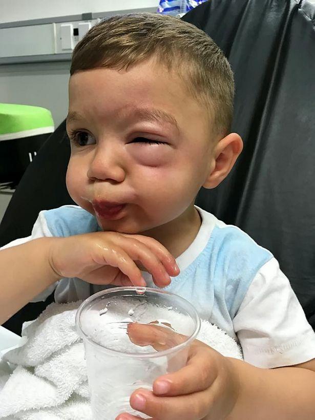 2-latek w czasie zakupów w Lidlu źle się czuł. Po kilku minutach ledwo mógł otworzyć oko