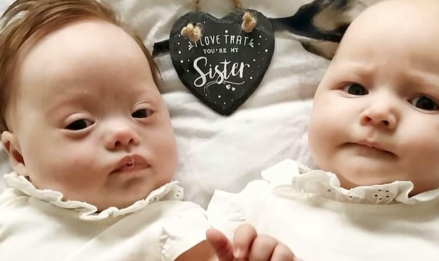 """30 minut po porodzie bliźniaczek lekarz wchodzi do pokoju młodej mamy i mówi """"przepraszam"""""""