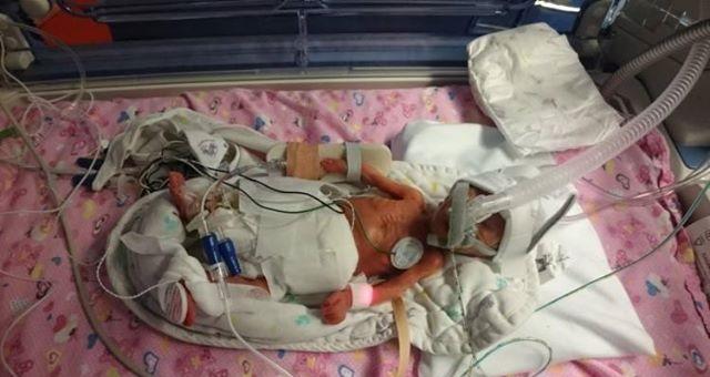 Urodziła się w 28. tygodniu ciąży. Lekarze włożyli ją do plastikowej torby z marketu