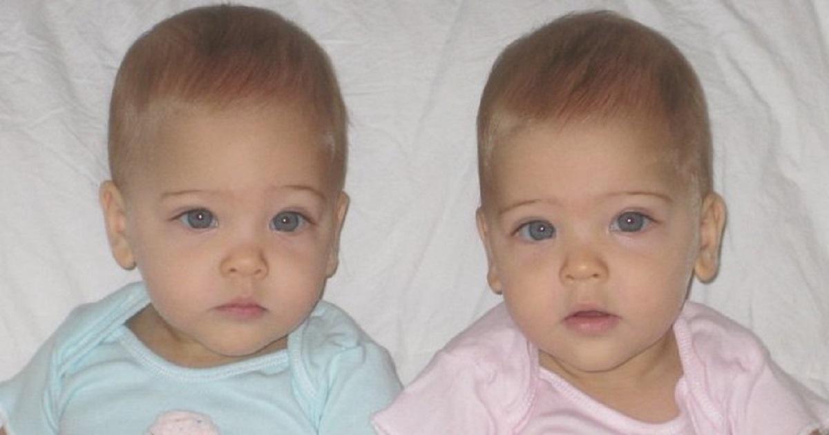 Przyszły na świat 10 lat temu. Dziś uważane są za najpiękniejsze bliźniaczki w historii