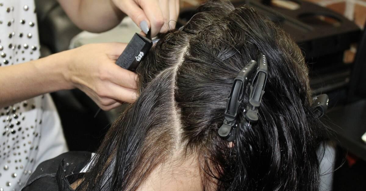 Kosmetyczka poparzyła twarz klientce. Później okazało się, że zaraziła ją też groźna bakterią