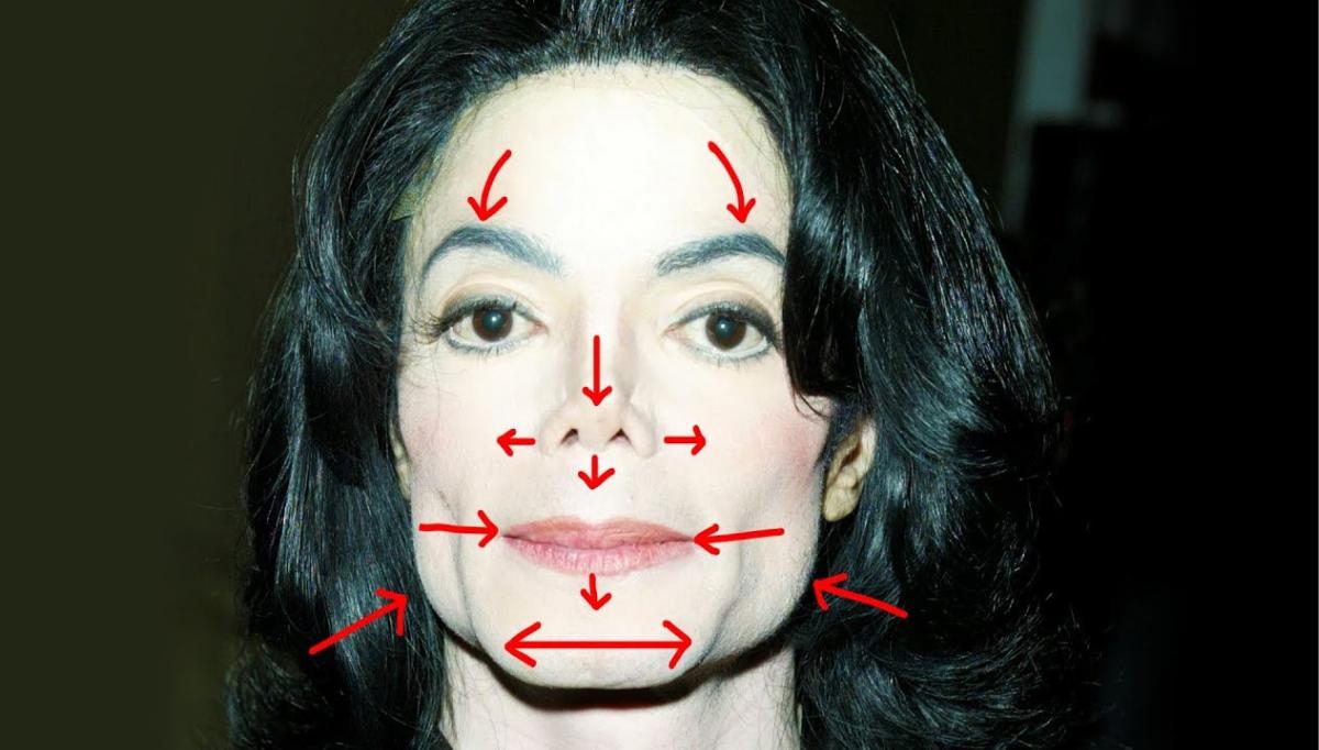 Michael Jackson bez operacji