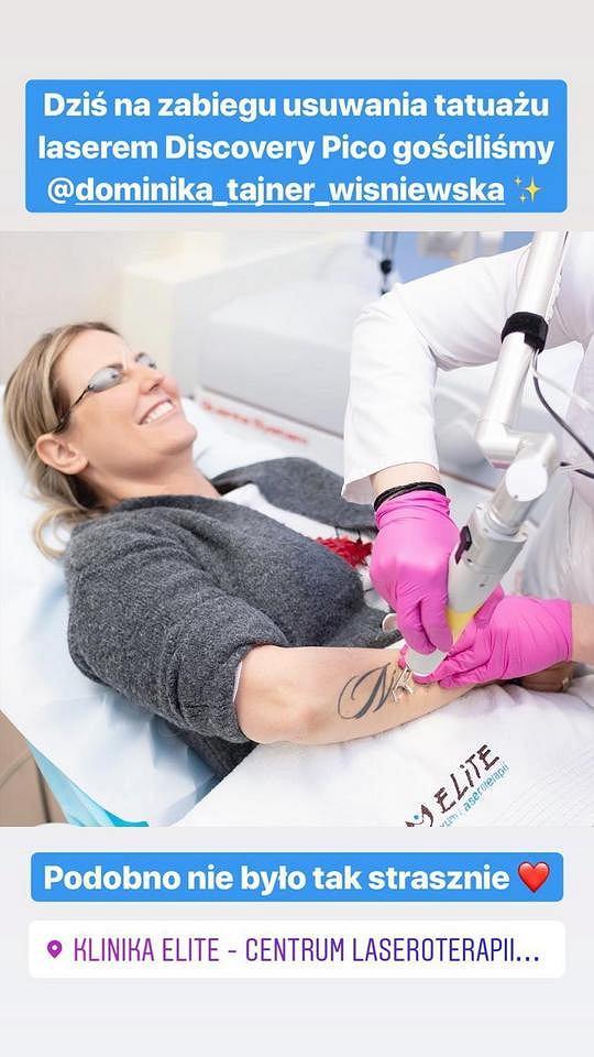 Dominika Tajner wiśniewska usuwa tatuaż