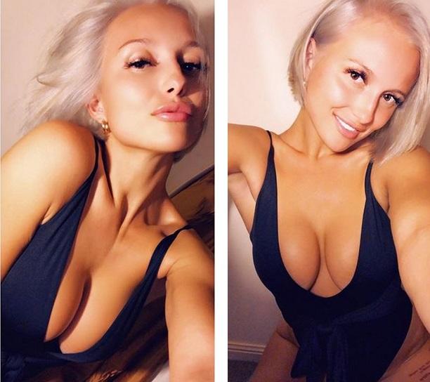 Chciała poprawić swój wygląd po ciąży. Teraz bardziej przypomina gwiazdę porno niż młodą mamę