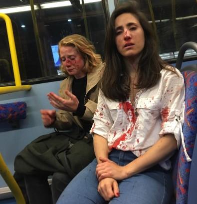 """Homoseksualna para kobiet brutalnie pobita w autobusie. """"Bili nas po twarzach"""""""