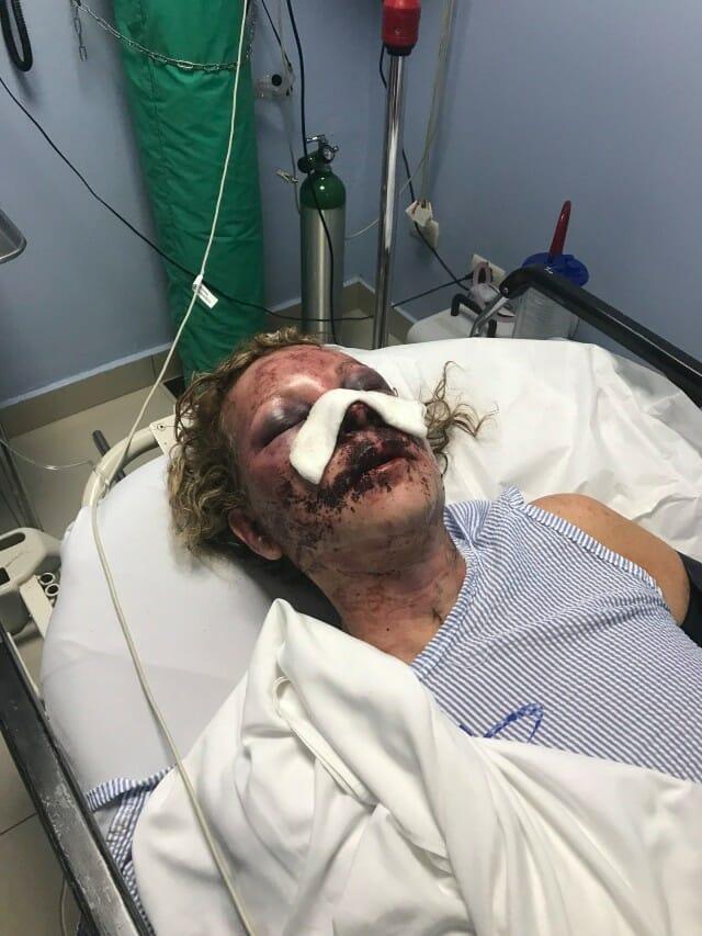 51-latka została brutalnie pobita na wakacjach. Napastnik myślał, że ją zabił
