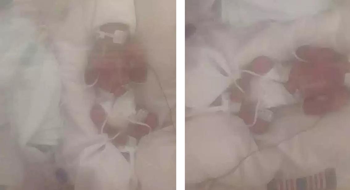 29-latka pod wpływem narkotyków urodziła bliźniaczki w 23. tygodniu ciąży. Nie przeżyły