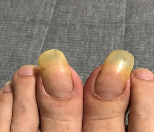 10 zdjęć najgorszego pedicure. Długość ich paznokci przechodzi najśmielsze oczekiwania