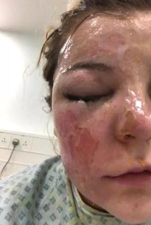 Włożyła jajka do mikrofalówki. Gdy je wyciągnęła, wybuchły jej w twarz