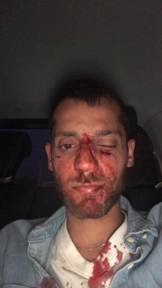 Studenci z Izraela brutalnie pobici w Warszawie