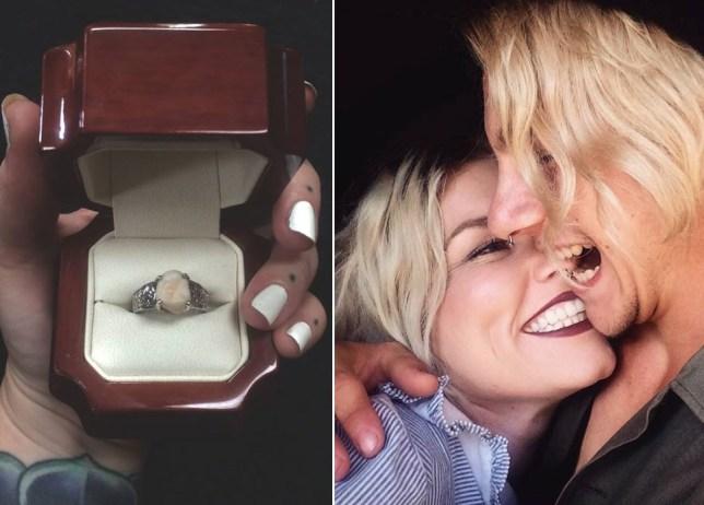 Ząb mądrości jako pierścionek zaręczynowy