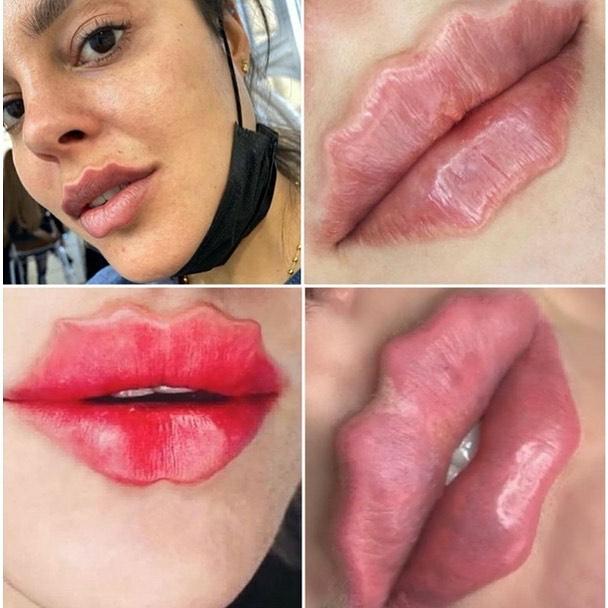 Metoda octopus lips