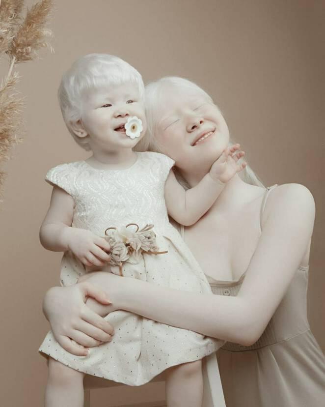 zdjęcia sióstr z albinizmem