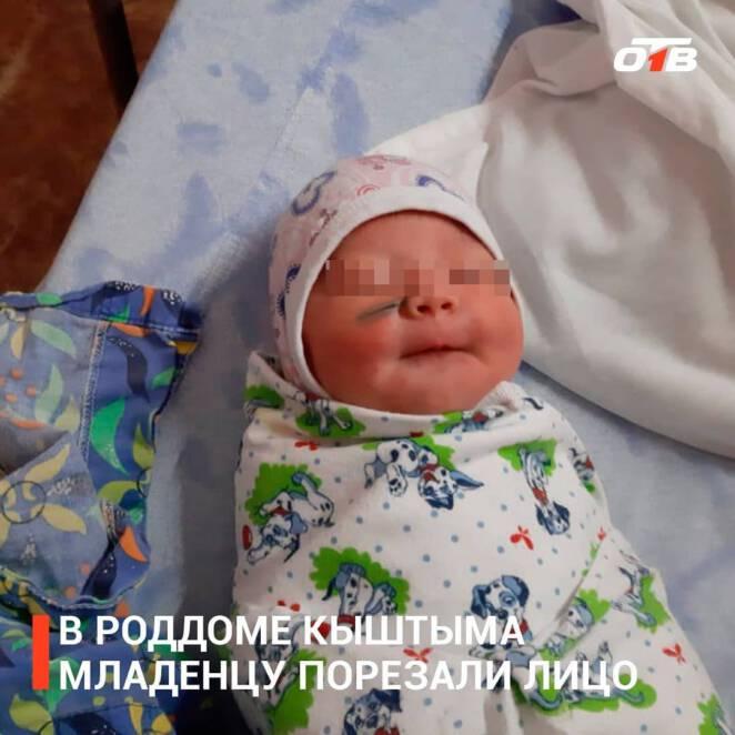 Dziecko okaleczone w trakcie cesarskiego cięcia