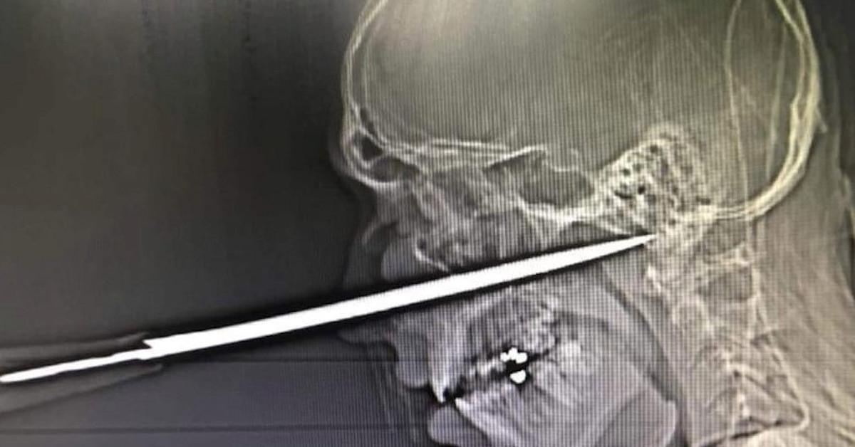ugodzenie nożem w twarz