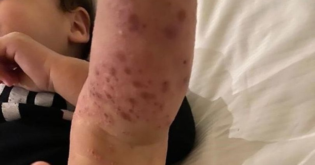 choroba skóry po kąpieli w basenie 2