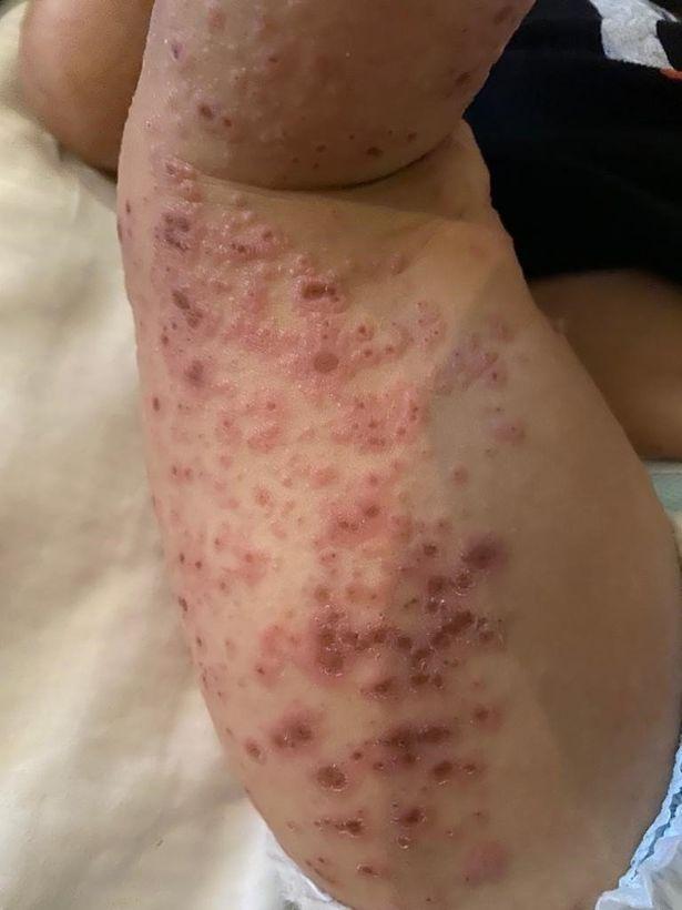 choroby skóry po kąpieli w basenie 3
