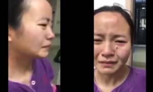 Pielęgniarka pogryziona po twarzy przez pacjentkę, która chciała uciec!