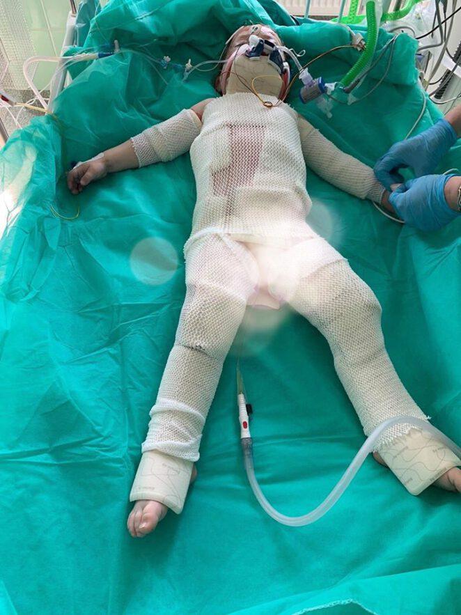dwuletnia dziewczynka poparzona olejem 2