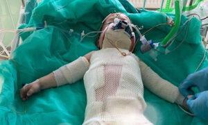 2-letnia dziewczynka poparzona olejem walczy o życie. Jest tylko jeden ratunek