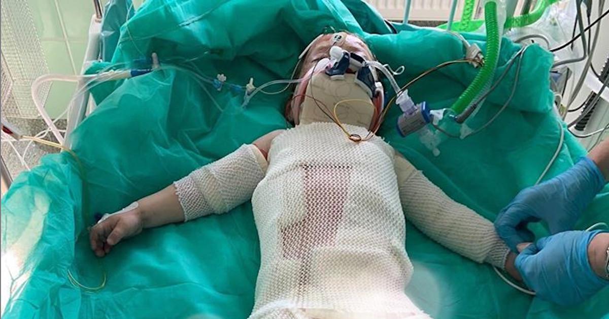 dwuletnia dziewczynka poparzona olejem