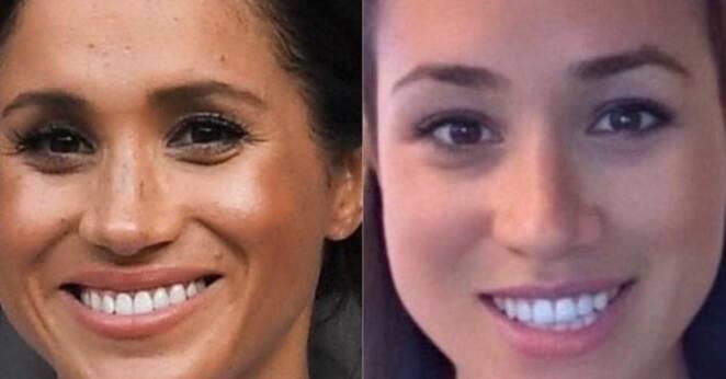 Co się stało z twarzą Meghan Markle